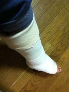 ギプスを巻いた足